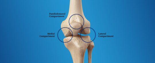 tricompartmental osteoarthritis diagram