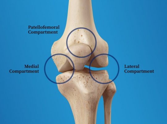 tricompartmental osteoarthritis diagram